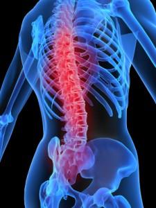 Back Pain Skeletal Image